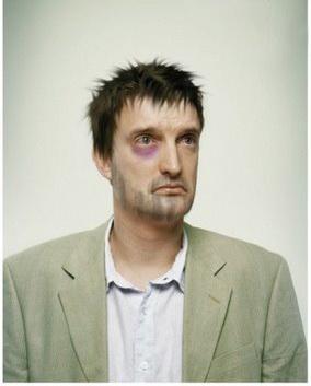 фото человека с похмелья